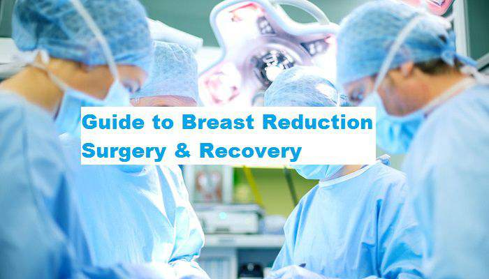 Guide to Breast Reduction Surgery & Recovery