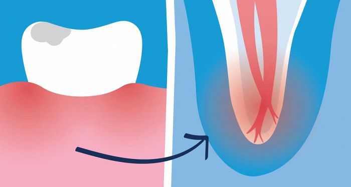 7 Symptoms if you Need a Root Canal for your Teeth - RC